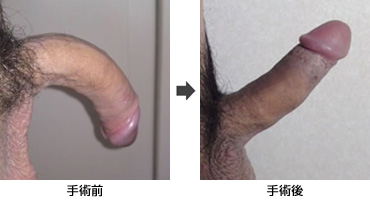 shourei_icatch6
